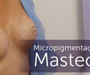 Micropigmentação, um caminho pós Mastectomia