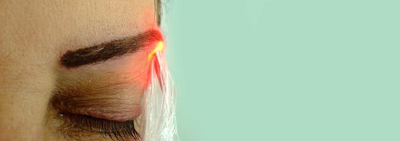 A Laserterapia na Micropigmentação