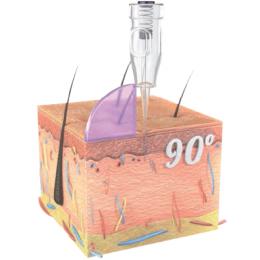 90 graus - fixação