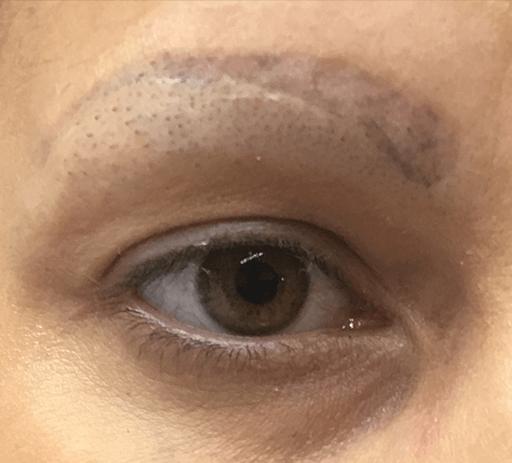 Despigmentação de Sobrancelhas 5