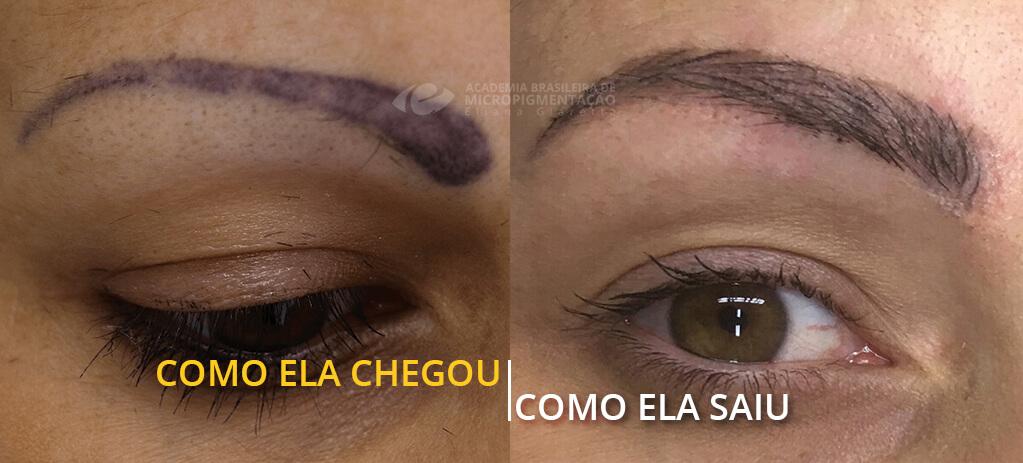 Despigmentação de Sobrancelha antes e depois
